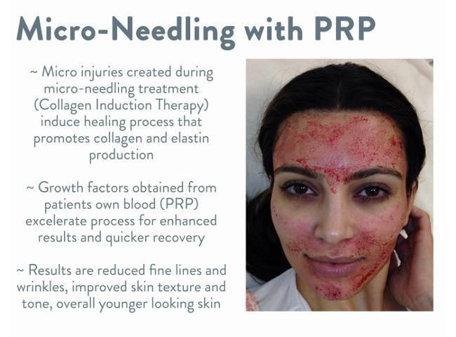 efficacy of growth factors concentration after prp Prp is defined as serum with three to eight more platelet concentration than   later in the healing process, these neo-vessels provide active growth factors,.