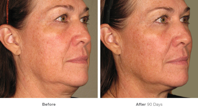 Ultherapy Chin