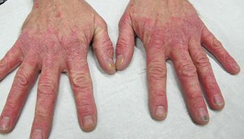 Inflammatory Skin