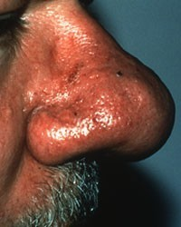 Subtype 3: Enlargement of the Nose (Phymatous Rosacea)