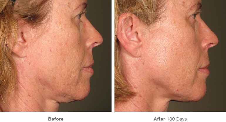 Ultherapy face