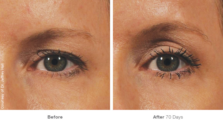 Ultherapy Eyes