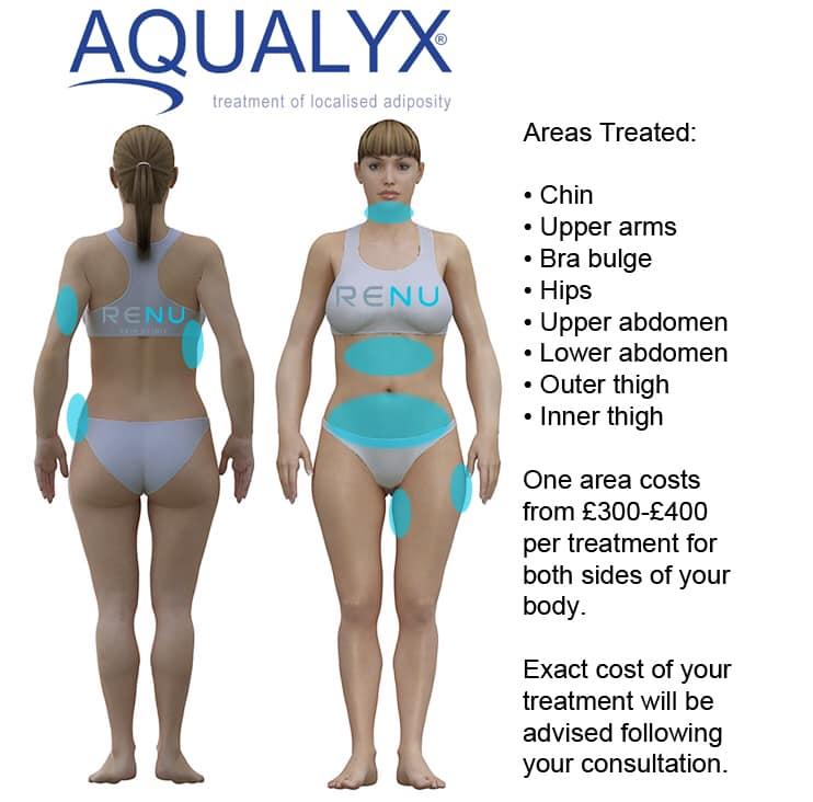 Aqualyx FAQ